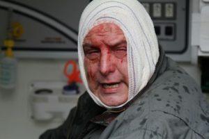 Guarda municipal ferido: PM tentou barrar ocupação da Câmara. Foto: Gerson Kleina/Gazeta do Povo.