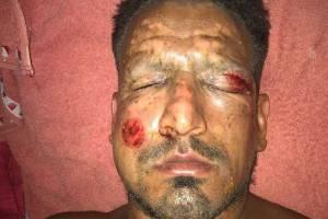 Viatri sofreu acidente doméstico no réveillon. Foto: Roberto Moar